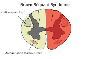 Brown Sequard Syndrome Wikem