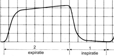 Typical waveform of a capnogram