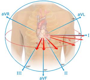 St Segment Elevation Myocardial Infarction Wikem