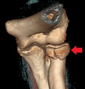 Radial head fracture - WikEM
