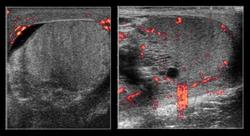 Testicular ultrasound - WikEM