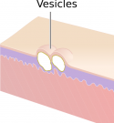 Vesicles (2).png